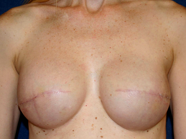 breast implant after cancer jpg 853x1280